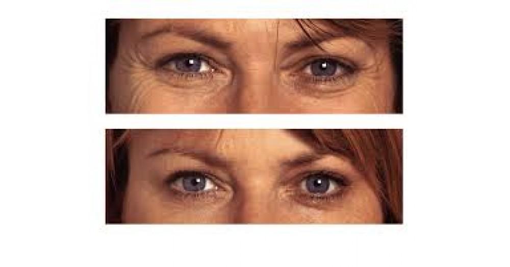 Tratament Botox pentru intindere riduri