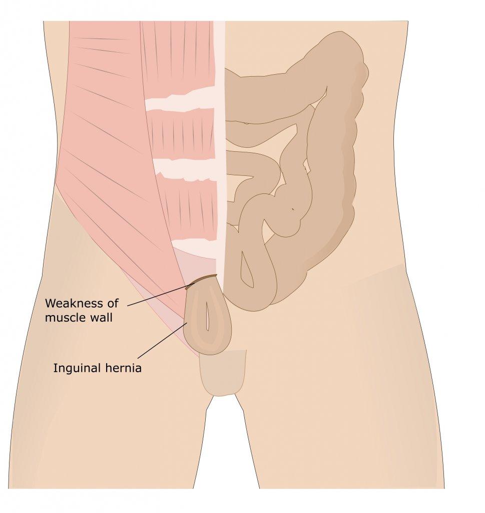 varicoză pelviană mare în simptomele femeilor)