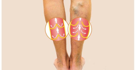 consecințe după operație varicoză)