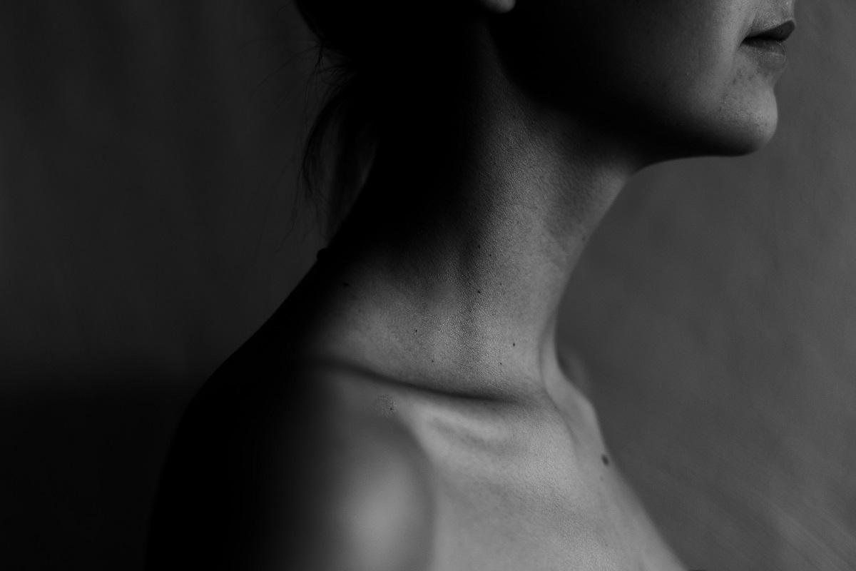 varicoza fotografiei gâtului)